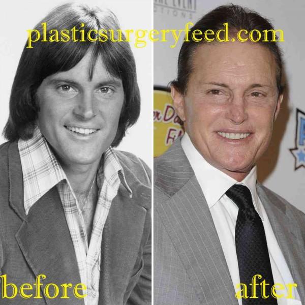 Bruce Jenner Facelift