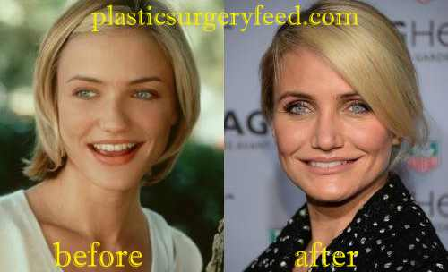Cameron Diaz Facial Filler