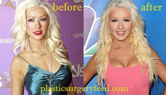 Christina Aguilera Breast Implant