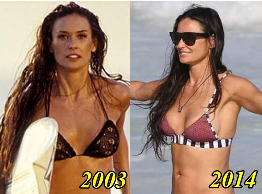 Demi Moore Breast Implant