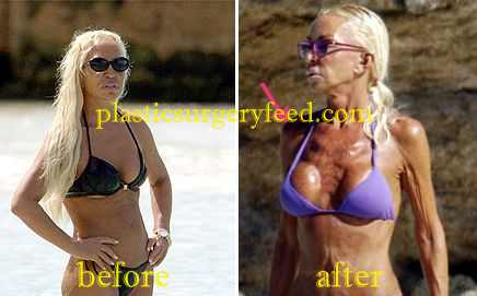 Donatella Versace Breast Implant and Liposuction