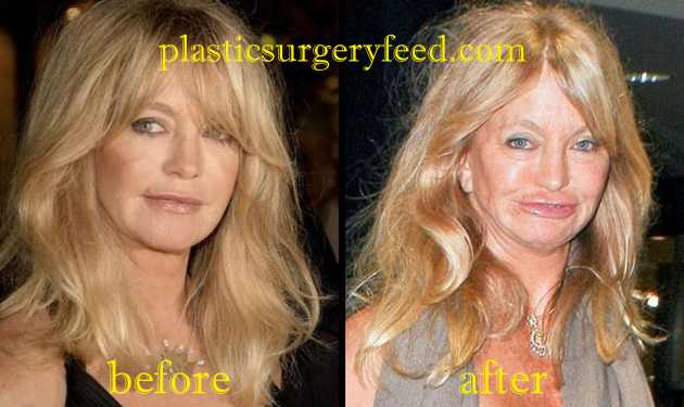 Goldie Hawn Botox and Facelift
