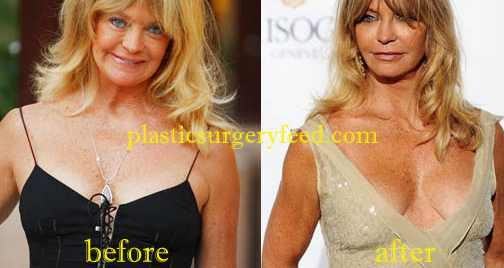 Goldie Hawn Breast Implant