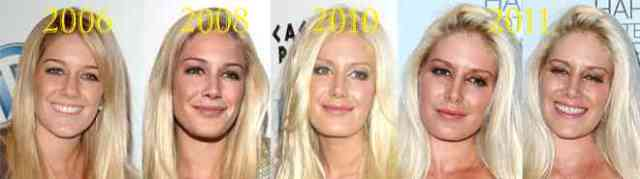 Heidi Montag Before and After