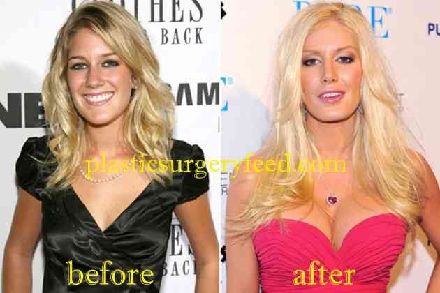 Heidi Montag Breast Implants