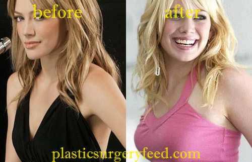 Hilary Duff Breast Implant