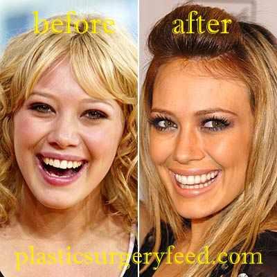 Hilary Duff Nose Job