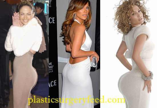 Jennifer Lopez Buttock Implants