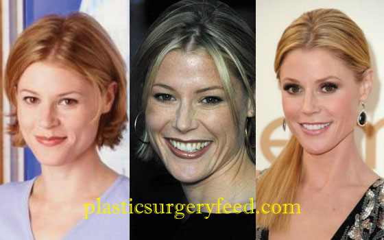 Julie Bowen Laser Treatment