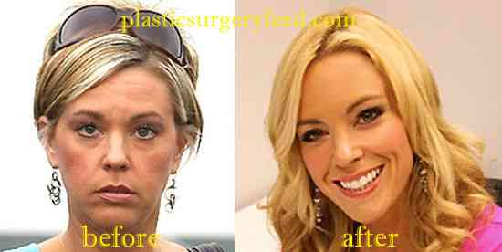 Kate Gosselin Botox and Facelift