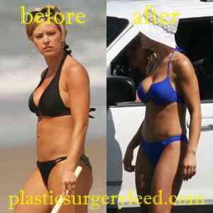 Kate Gosselin Breast Implants