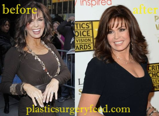 Marie Osmond Breast Reduction