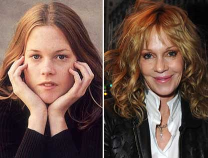 Melanie Griffith Lips Surgery