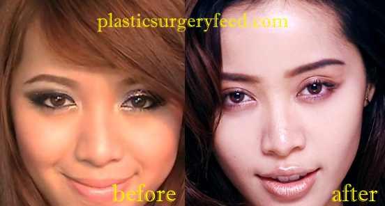 Michelle Phan Nose Job
