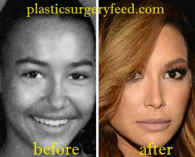 Naya Rivera Nose Job Rhinoplasty