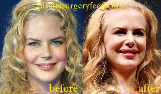 Nicole Kidman Lip Injection