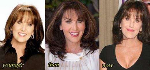 Robin McGraw Lips Enhancement