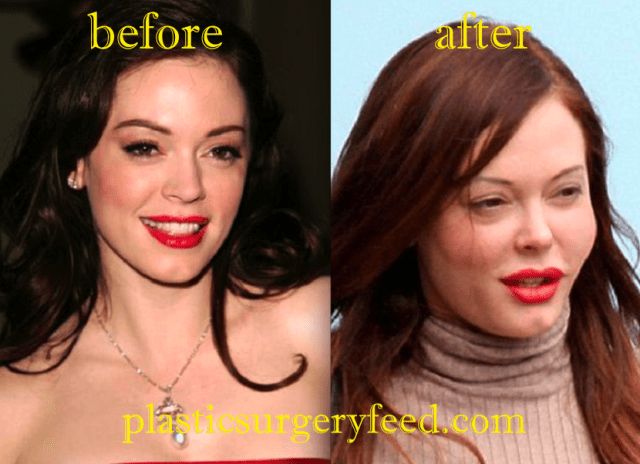 Rose McGowan Cheek Filler