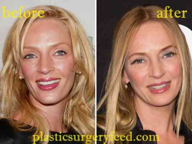 Uma Thurman Botox and Facelift