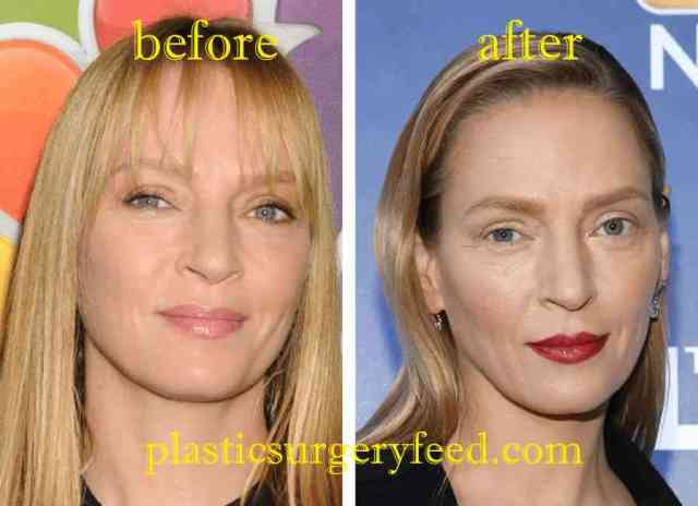 Uma Thurman Nose Job Rhinoplasty