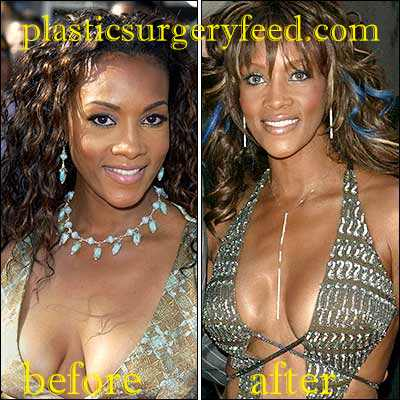 Vivica Fox Breast Implants