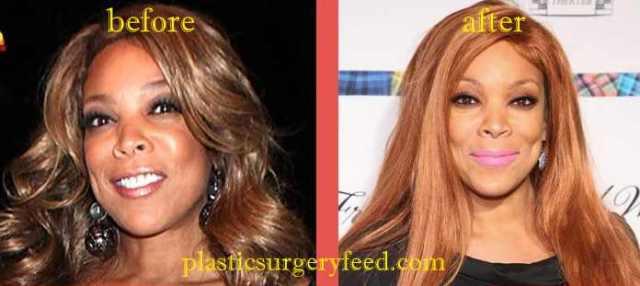 Wendy Williams Botox