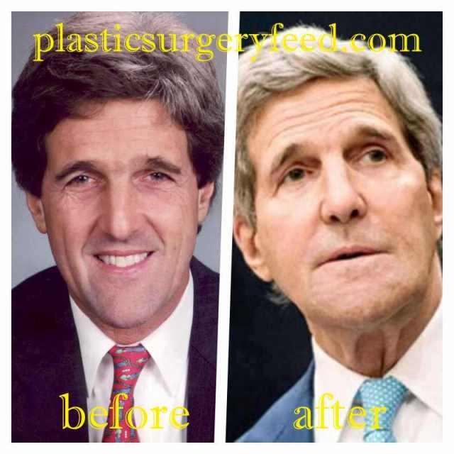 John Kerry Botox