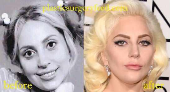 Lady Gaga Nose Job