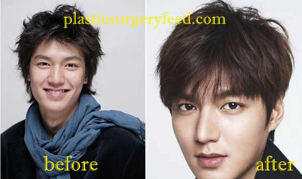 Lee Min Ho Plastic Surgery Nose Job