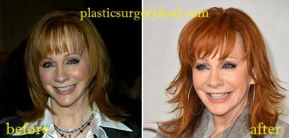 Reba McEntire Botox