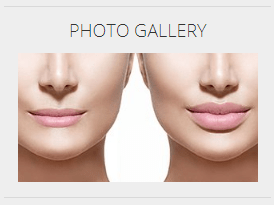 Plastic Surgery Group - image of before and after lips