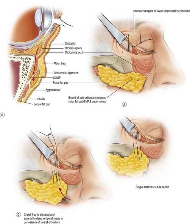 Blepharoplasty Plastic Surgery Key