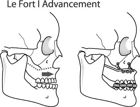 Tmj Surgery Types