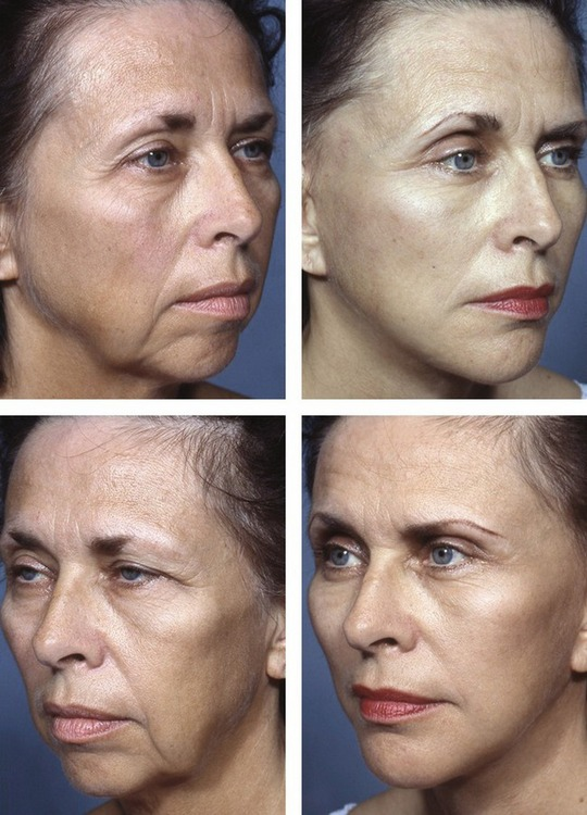 Facelift with SMAS technique and FAME   Plastic Surgery Key