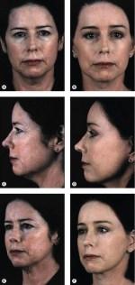 Facelift anatomy, SMAS, retaining ligaments and facial ...