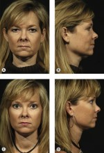 Autologous contouring the lower face | Plastic Surgery Key