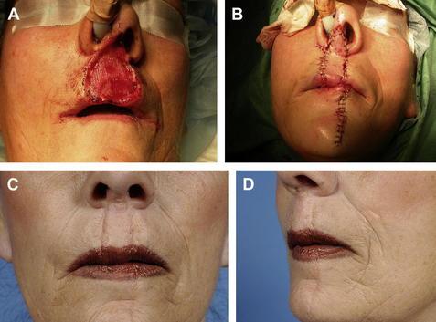 plastic Aesthetic facial surgery reconstructive