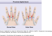 nail surgery plastic