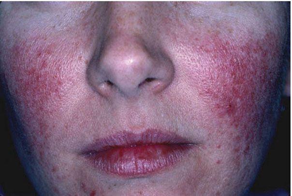 Inflammatory Lesions Rosacea