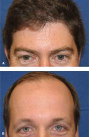 forehead plastic surgery key