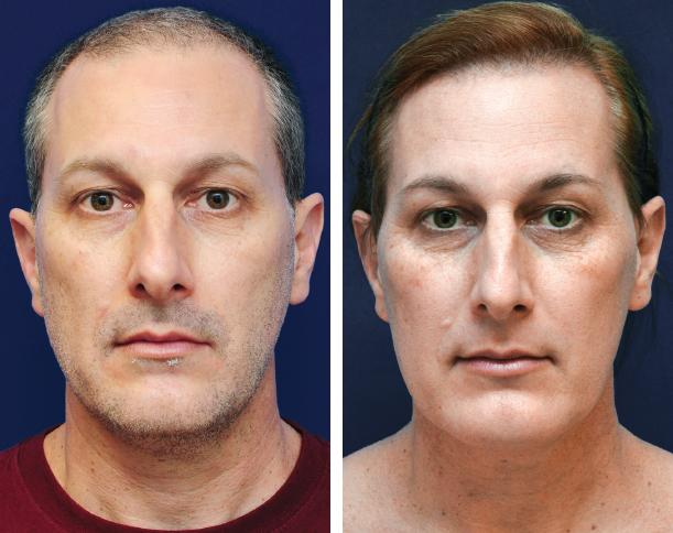 Facial Feminization Surgery: A Global Approach | Plastic