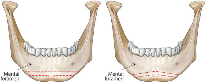 Treatment of Long Face with Facial Bone Contouring Surgery