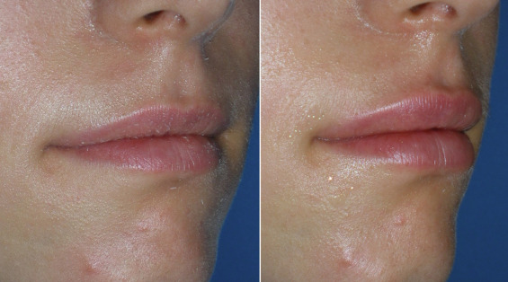 Injectable Fillers: Lip Augmentation, Lip Reduction, and Lip