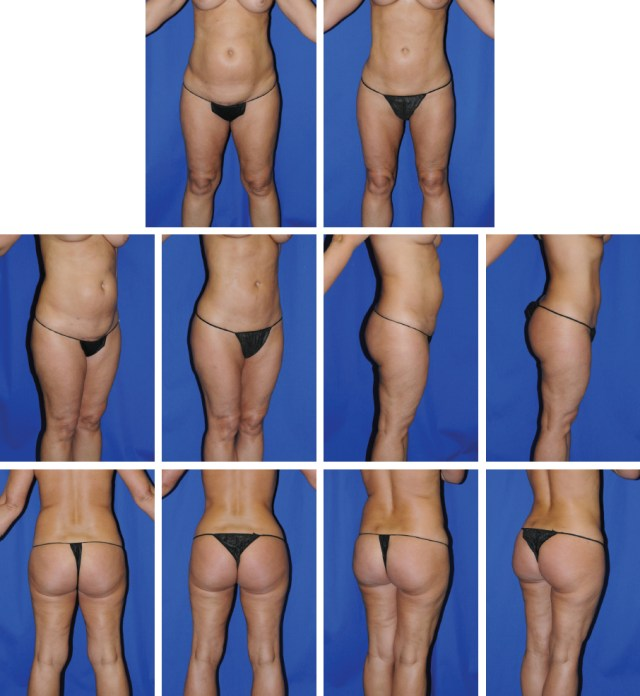 Alternative Approach to Repeat Liposuction | Plastic Surgery Key