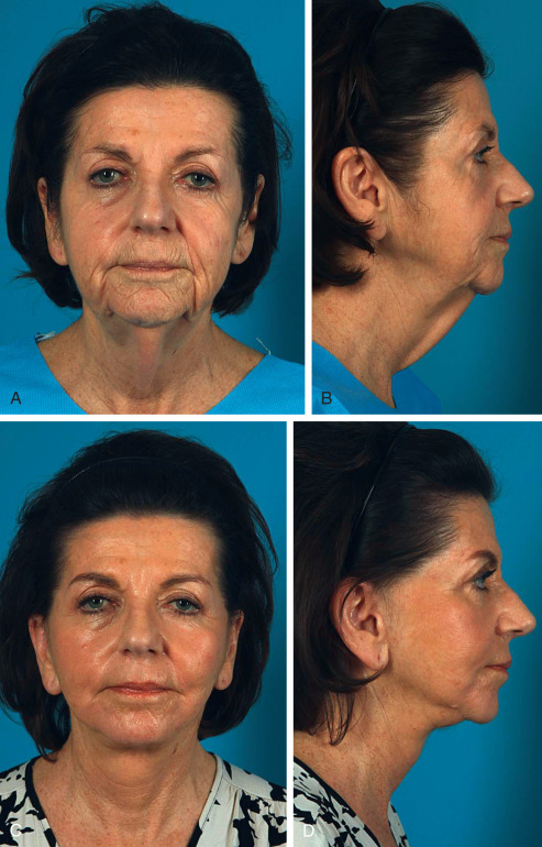 Lateral SMASectomy Facelift   Plastic Surgery Key