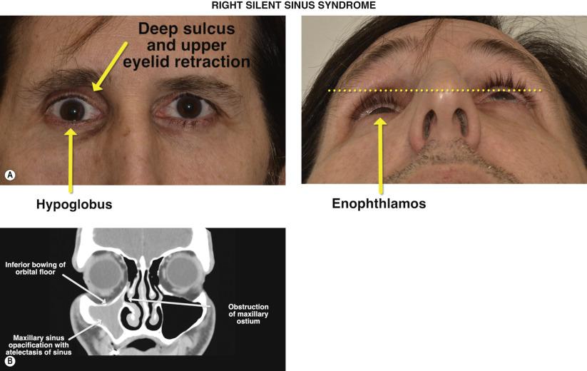 Orbital Floor Reconstruction In Silent Sinus Syndrome