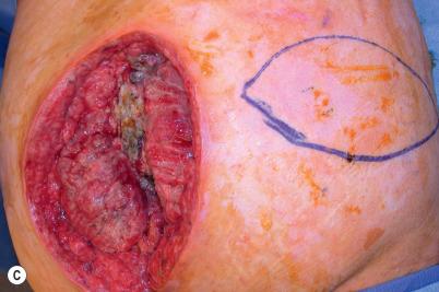 Back reconstruction   Plastic Surgery Key
