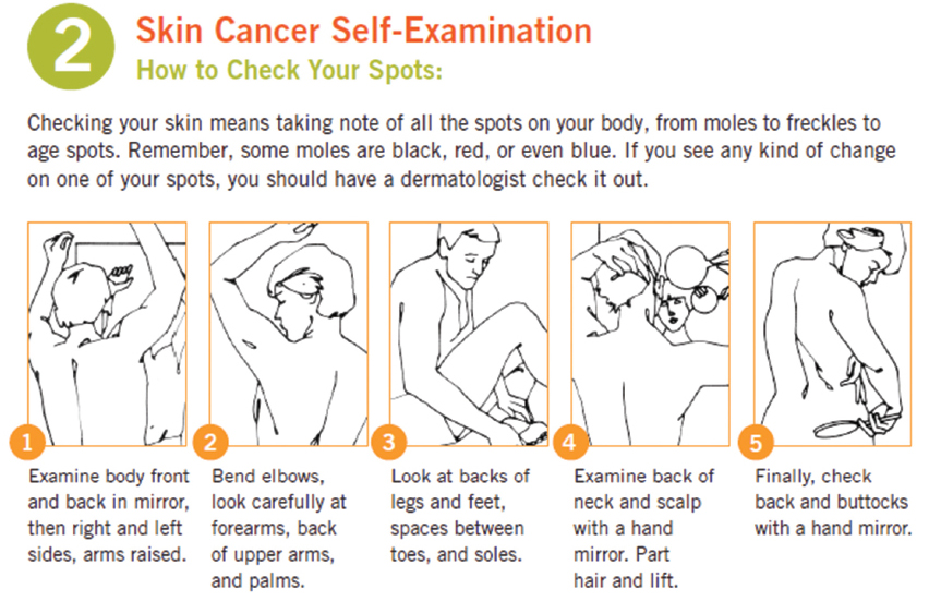 Prevention of Future Skin Cancer | Plastic Surgery Key