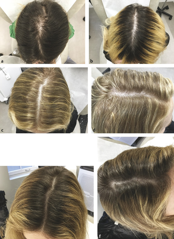 Platelet-rich plasma (PRP) used in female hair loss—before and after. Patient 1 (a) prior to PRP and (b) 4 months post treatment. Patient 2 (c, d) prior to PRP and (e, f) 4 months post treatment.