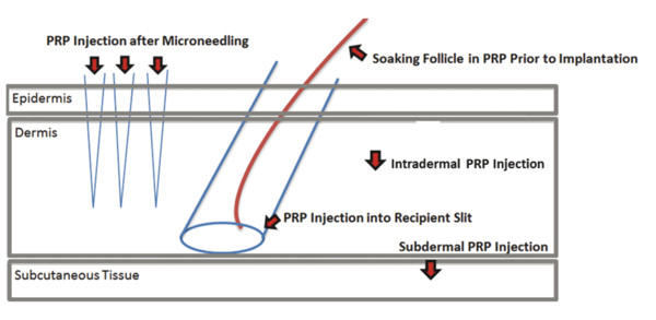 Possible locations to inject PRP. (Adapted from Puig CJ, Reese R, Peters M. Double-Blind, Placebo-Controlled Pilot Study on the Use of Platelet-Rich Plasma in Women With Female Androgenetic Alopecia.